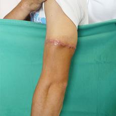 しょういんしん縮小手術 保険適用